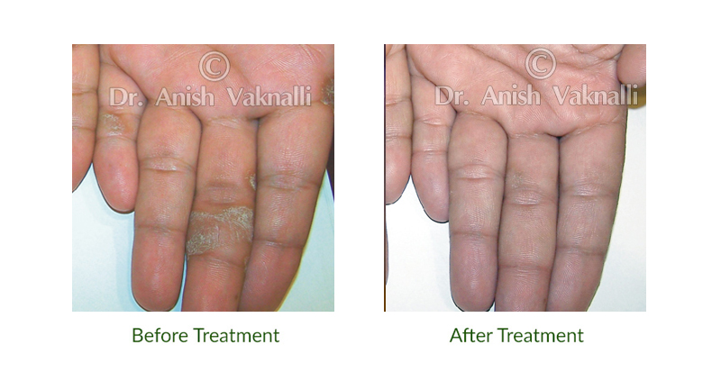 homeopathic medicine for psoriasis skin disease