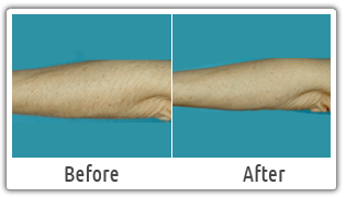 Services Arms Hair Removal Services In Offered By Dermaworld