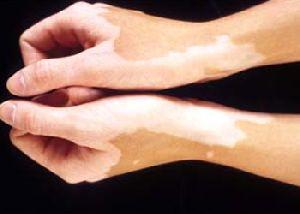 Leucoderma Treatment