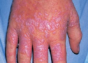 Lichen Planus Treatment