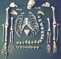 Disarticulated Human Skeleton