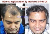 Hair Transplant Services